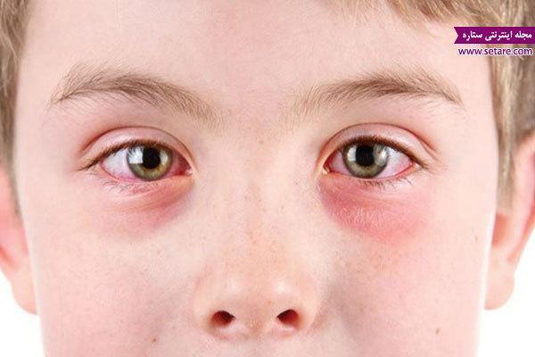 درمان ورم چشم در طب سنتی
